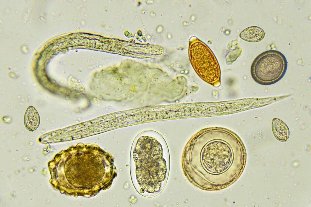wormen wormeneitjes microscoop